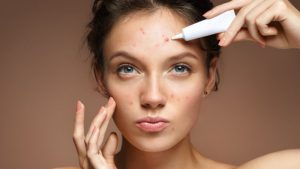 Get Rid Of Your Acne With These Great Tips!