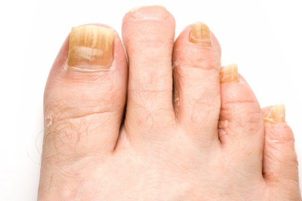 Ingrown Nail Fungus